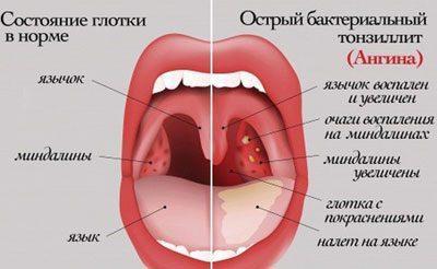 Симптомы острой ангины