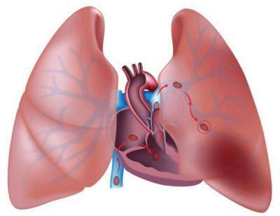Давление в лёгочной артерии