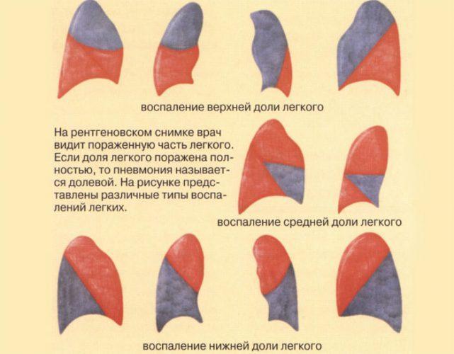 Виды долевой пневмонии