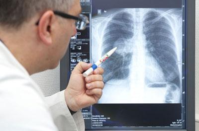 Диагностика болезней легких