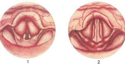 Эндоскопическая картина при ларингите