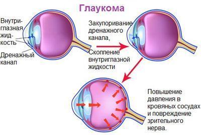 Следствие глаукомы