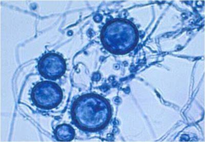 Гистоплазма капсулатум