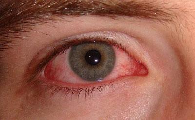 Глаз при конъюктивите