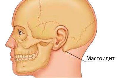 Локализация мастоидита