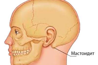 Локализация воспаления при мастоидите