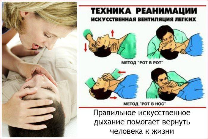 Вдувание воздуха в рот или в нос