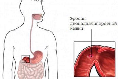 Эррозия кишечника