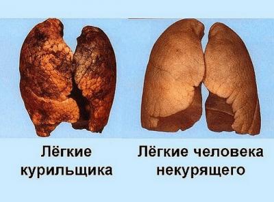 Легкие курящего и некурящего