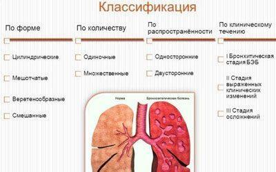Классификация бронхита