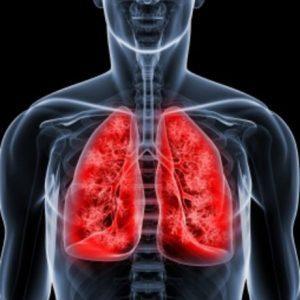 Лёгочные кровотечения