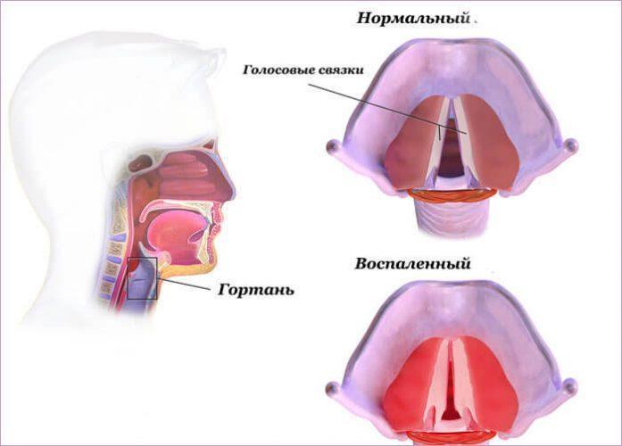 Утолщение стенок голосовых связок