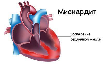 Проявление миокардита