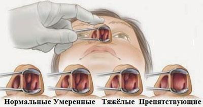 Виды полипов в носу