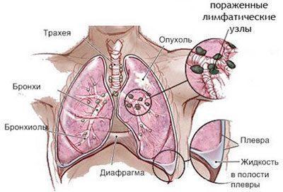 Саркома легких