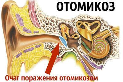 Заболевание отомикоз