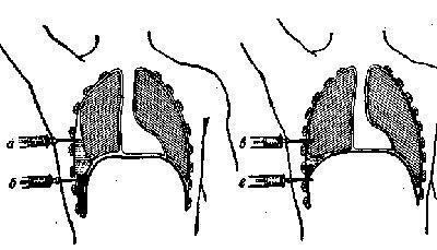Пункция плевральной области