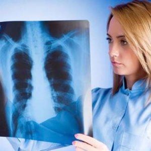 Инфильтративный туберкулёз лёгких