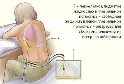 Откачивание жидкости из легких