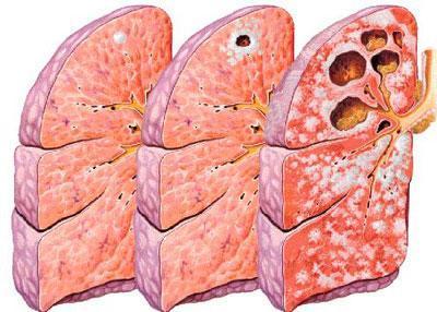 Развитие туберкулёза