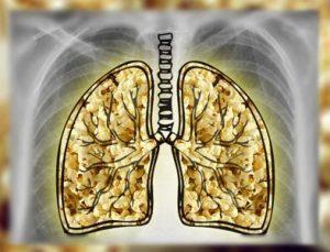 Попкорновая болезнь лёгких