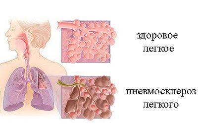 Следствие пневмосклероза