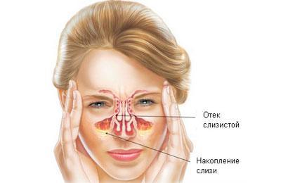 Проявление катарального синусита