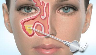 Удаление гноя из пазух носа