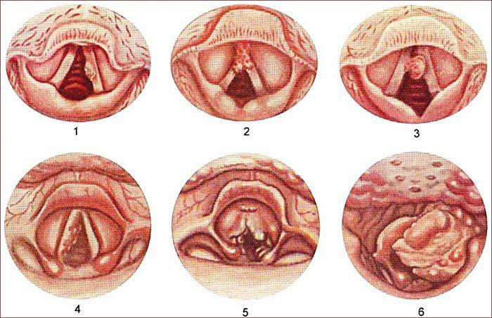 Особенности рака гортани 3 степени и продолжительность жизни с ним. Плоскоклеточный рак гортани. Степени и прогноз