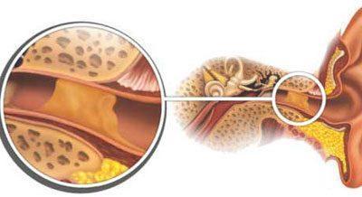 Серная пробка в ухе