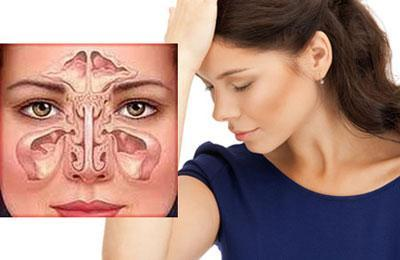 Симптом фронтита