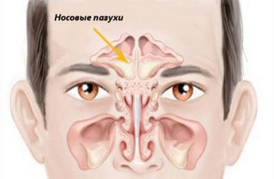 Носовые пазухи при синусите