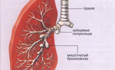 Проявление бронхоэктаза