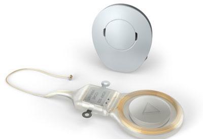 Имплант среднего уха