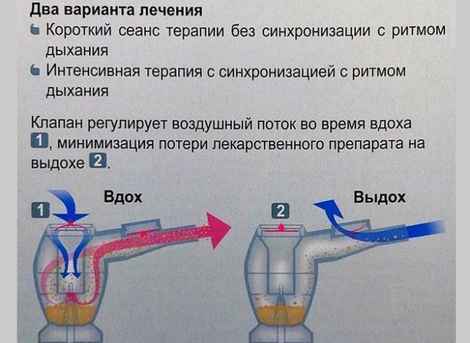 Варианты лечения при помощи небулайзера
