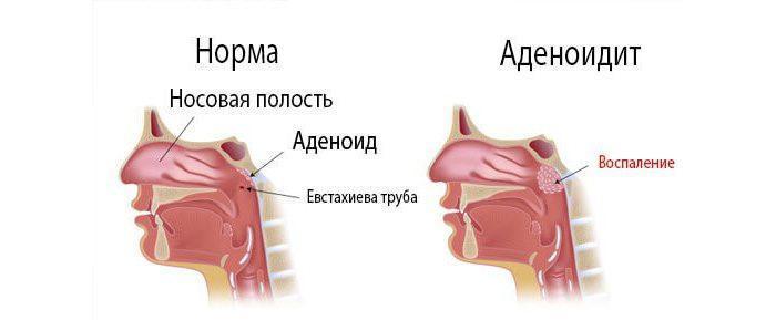 Аденоидит