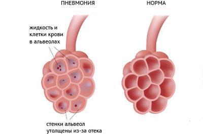 Альвеолы при пневмонии