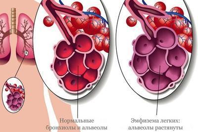 Альвеолы при эмфиземе легких