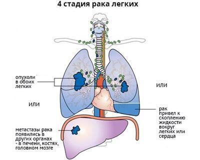 Четвертая стадия рака легкого