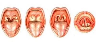 Виды абсцесса горла