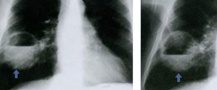 Абсцесс легкого на рентгене