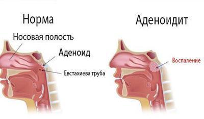 Проявление аденоидита