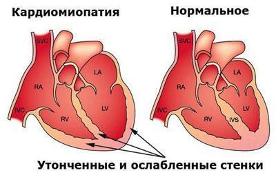 следствие кардиомиопатии