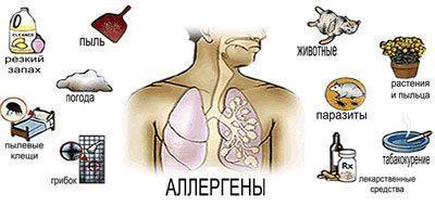 Перечень аллергенов