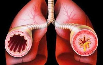 Мокрота при астме