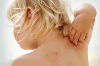Аллергический зуд у ребенка
