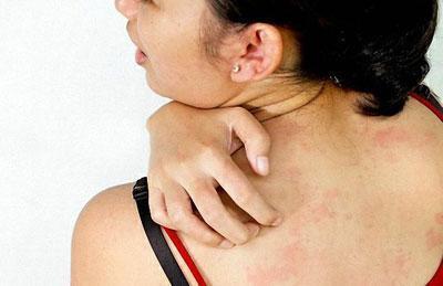 Аллергический зуд