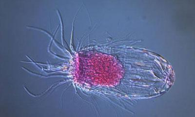 Анаэроб под микроскопом