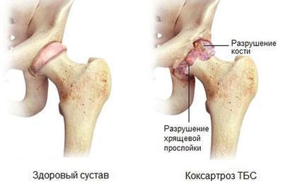 Разрушение тазобедренного сустава