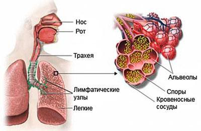 Аспергиллёз лёгких